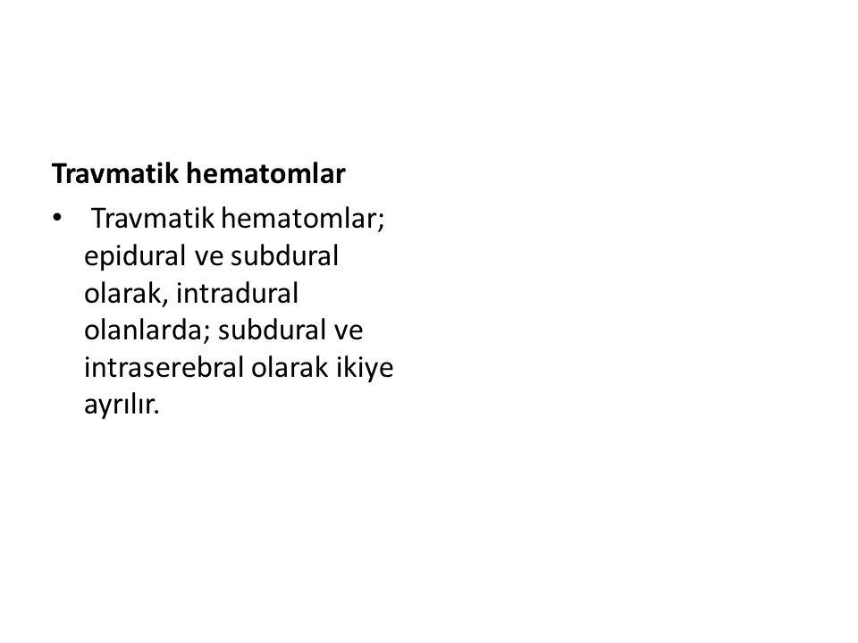 Epidural hematomlar Epidural hematomlar ekstradural hematom alarak da adlandırılır.