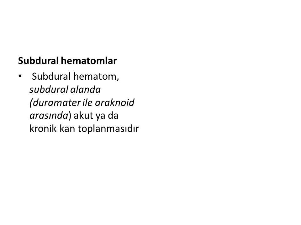Akut ve subakut subdural hematom Akut subdural hematom, çoğunlukla frontal ve temporal lobda beyin zarının yırtılması ile oluşur.