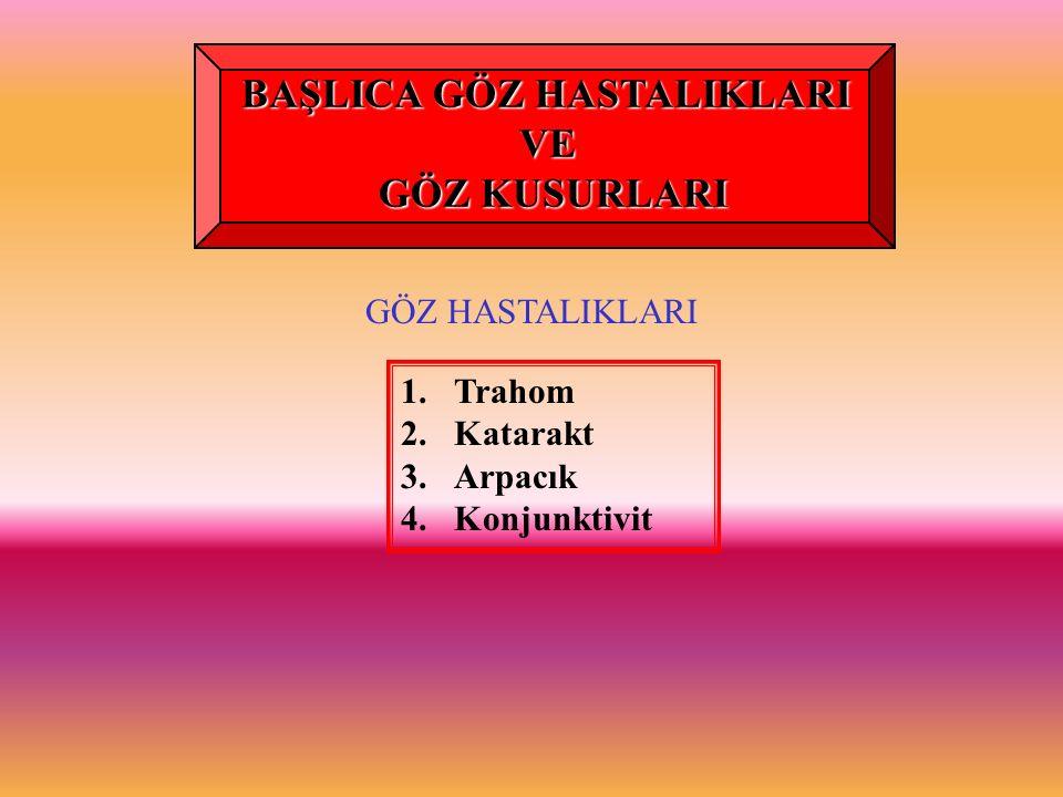GÖZ HASTALIKLARI 1.Trahom 2.Katarakt 3.Arpacık 4.Konjunktivit BAŞLICA GÖZ HASTALIKLARI VE GÖZ KUSURLARI