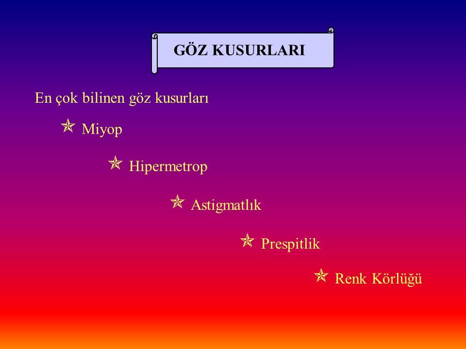GÖZ KUSURLARI En çok bilinen göz kusurları  Miyop  Hipermetrop  Astigmatlık  Prespitlik  Renk Körlüğü