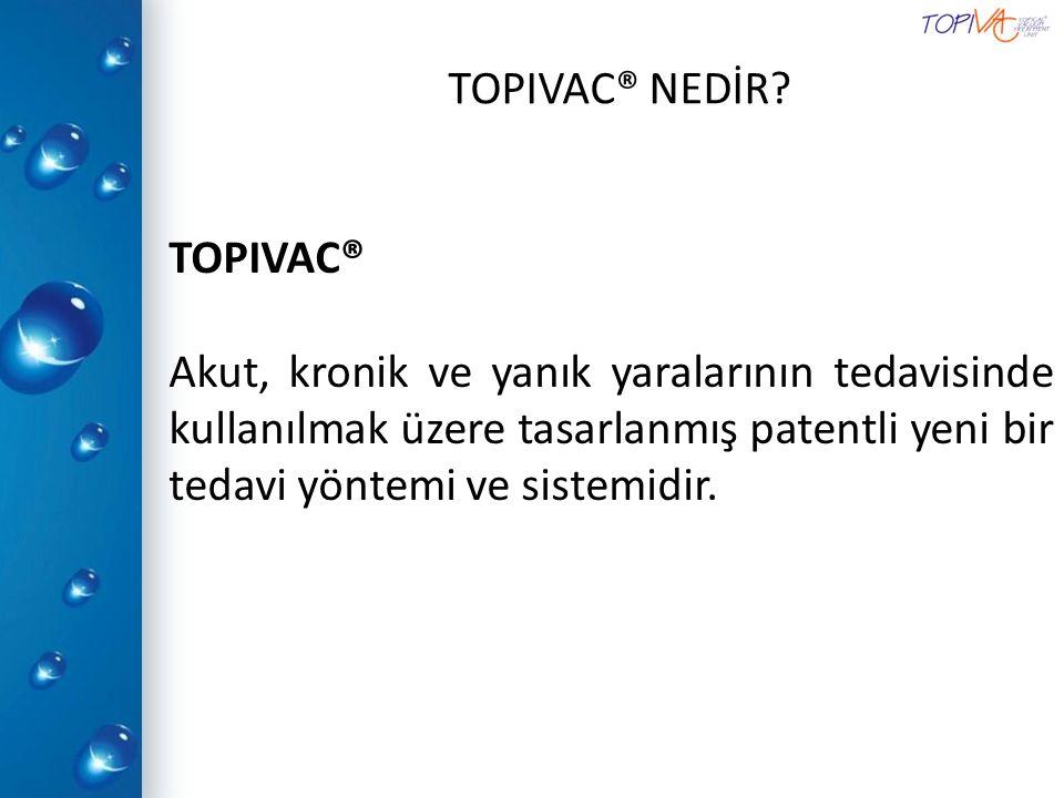 TOPIVAC® 'IN OLUŞMASI.