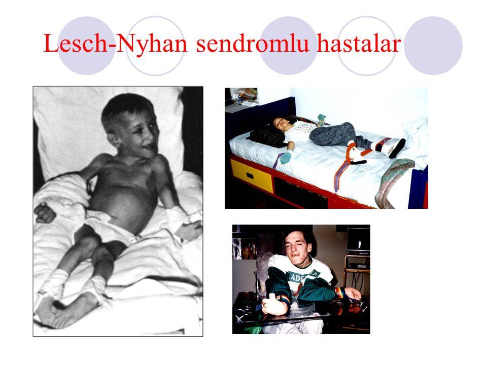 Lesch-Nyhan sendromlu hastalar