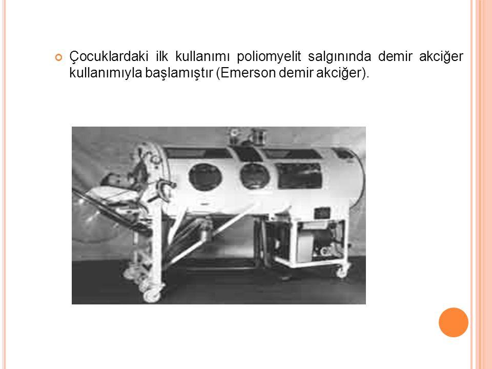 Çocuklardaki ilk kullanımı poliomyelit salgınında demir akciğer kullanımıyla başlamıştır (Emerson demir akciğer).