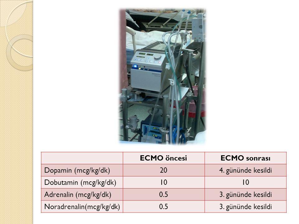 ECMO öncesiECMO sonrası Dopamin (mcg/kg/dk)204.