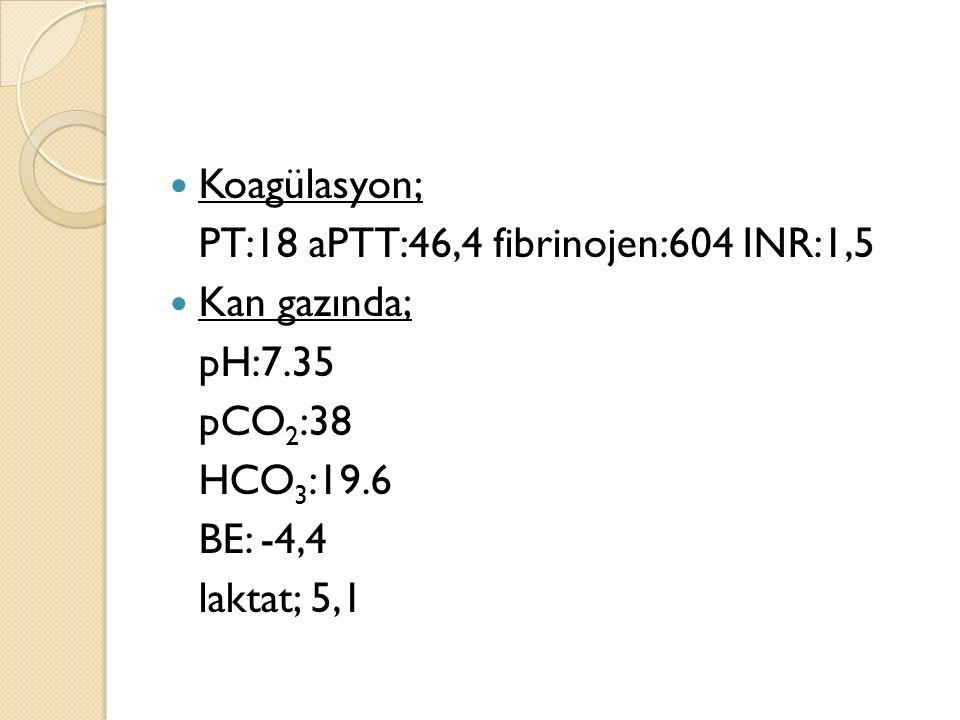 Koagülasyon; PT:18 aPTT:46,4 fibrinojen:604 INR:1,5 Kan gazında; pH:7.35 pCO 2 :38 HCO 3 :19.6 BE: -4,4 laktat; 5,1