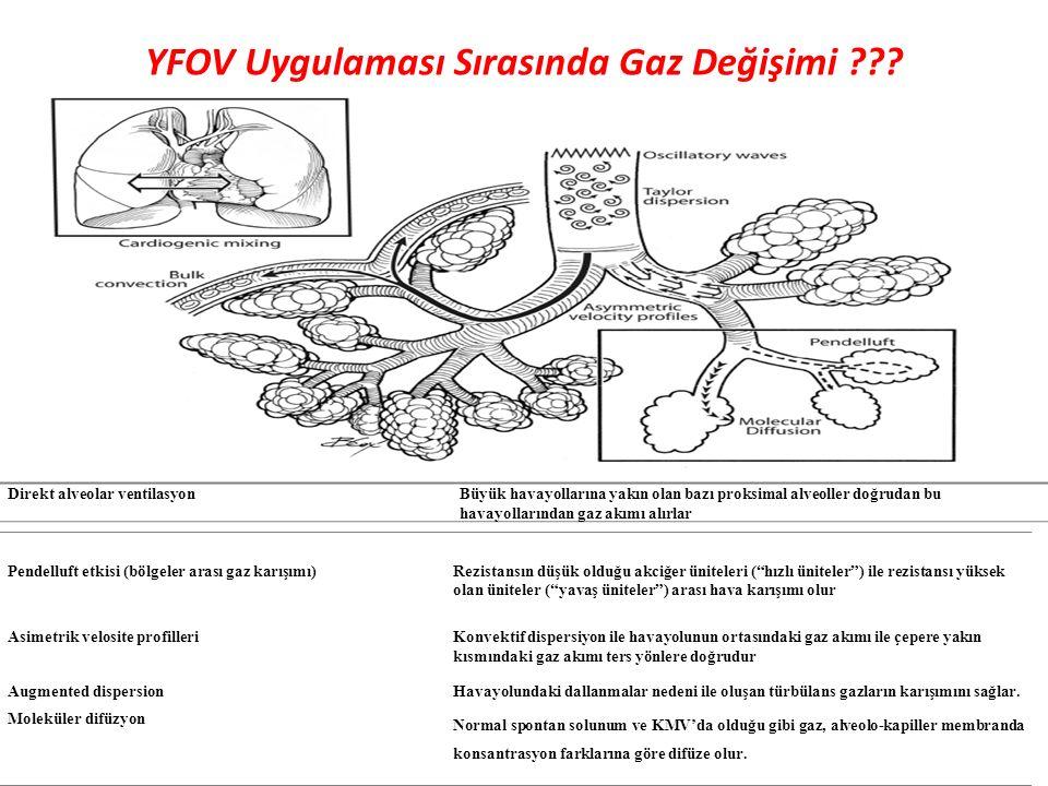 """YFOV Uygulaması Sırasında Gaz Değişimi ??? Pendelluft etkisi (bölgeler arası gaz karışımı)Rezistansın düşük olduğu akciğer üniteleri (""""hızlı üniteler"""""""