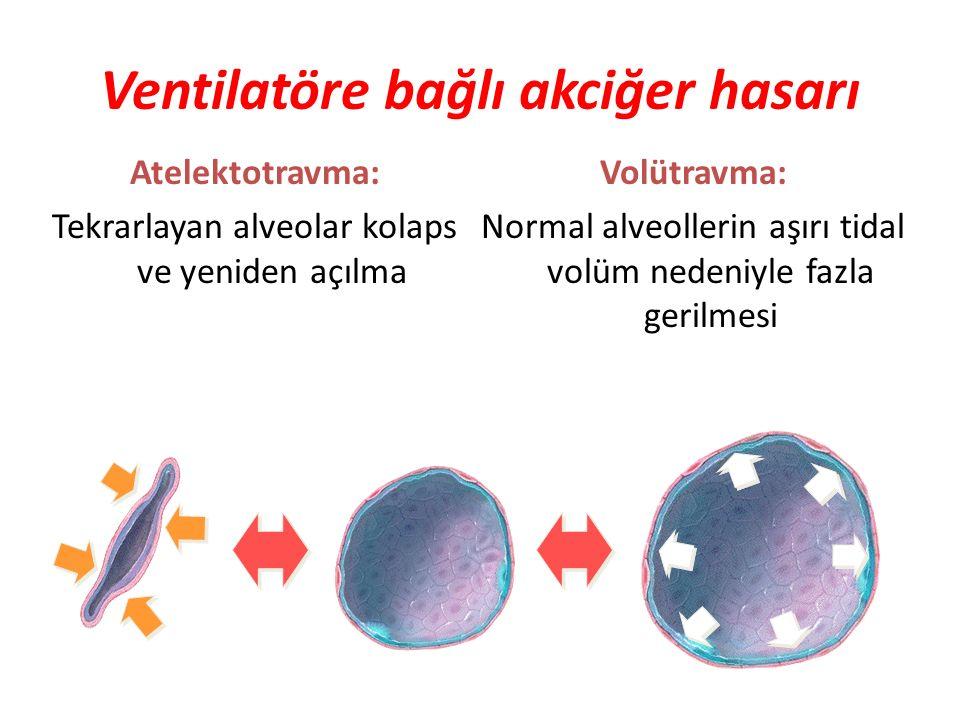 Atelektotravma: Tekrarlayan alveolar kolaps ve yeniden açılma Volütravma: Normal alveollerin aşırı tidal volüm nedeniyle fazla gerilmesi Ventilatöre b
