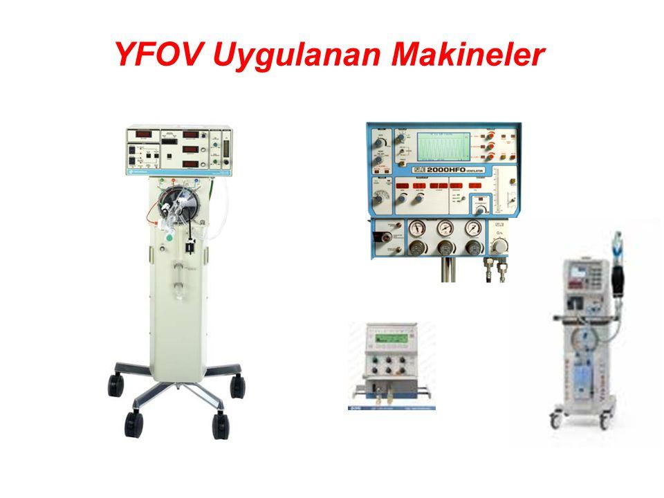 YFOV Uygulanan Makineler
