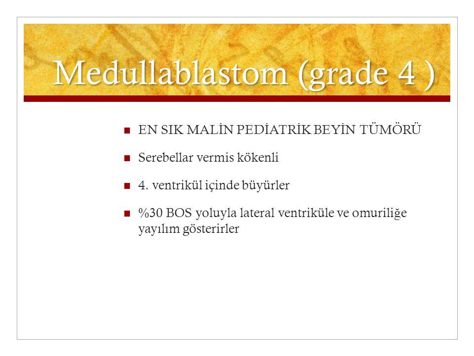 Medullablastom (grade 4 ) EN SIK MAL İ N PED İ ATR İ K BEY İ N TÜMÖRÜ Serebellar vermis kökenli 4. ventrikül içinde büyürler %30 BOS yoluyla lateral v