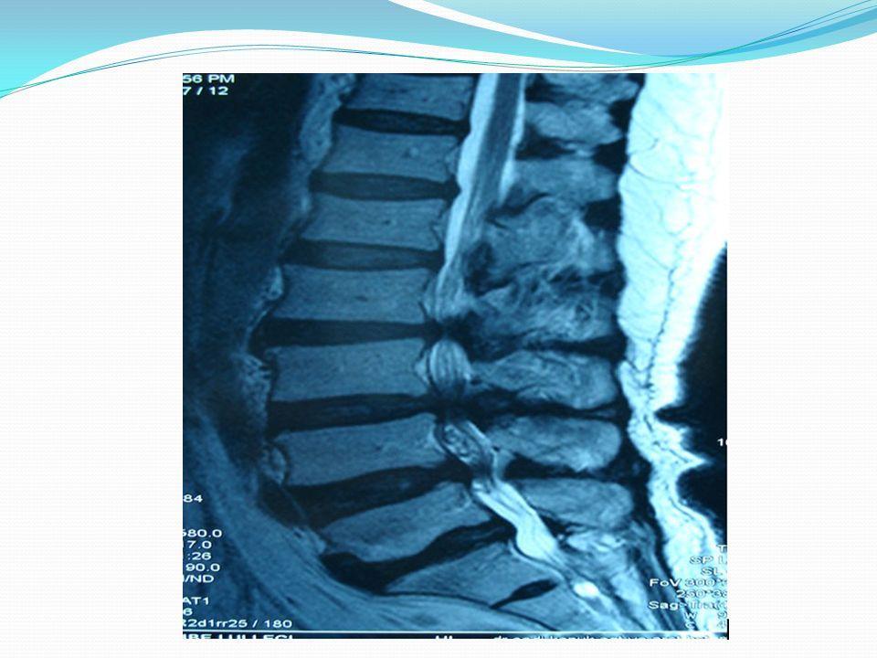 SERVİKAL DİSK HERNİSİ -Oluş şekli bel fıtığı ile aynı -7 tane servikal vertebradan oluşan servikal bölgedeki disklerin herniasyonuna boyun fıtığı denir.