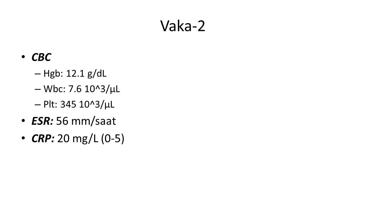 Vaka-2 CBC – Hgb: 12.1 g/dL – Wbc: 7.6 10^3/µL – Plt: 345 10^3/µL ESR: 56 mm/saat CRP: 20 mg/L (0-5)