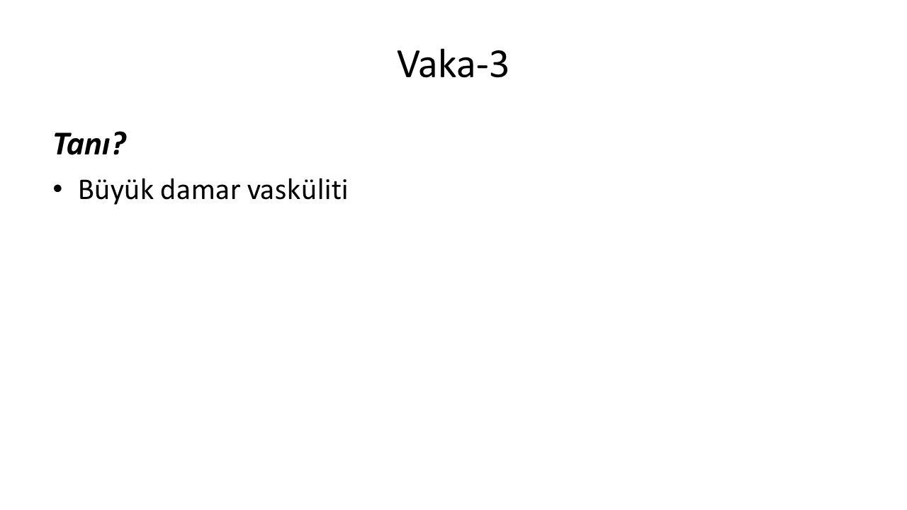 Vaka-3 Tanı Büyük damar vasküliti