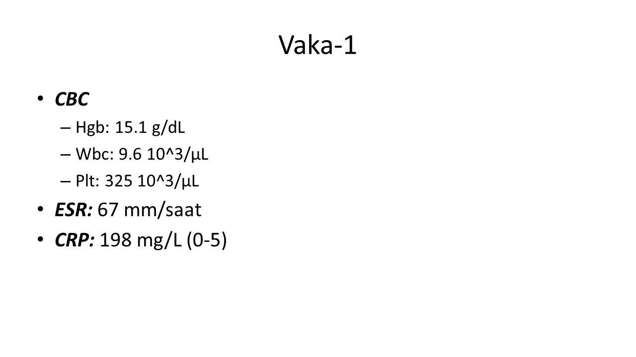 Vaka-1 CBC – Hgb: 15.1 g/dL – Wbc: 9.6 10^3/µL – Plt: 325 10^3/µL ESR: 67 mm/saat CRP: 198 mg/L (0-5)
