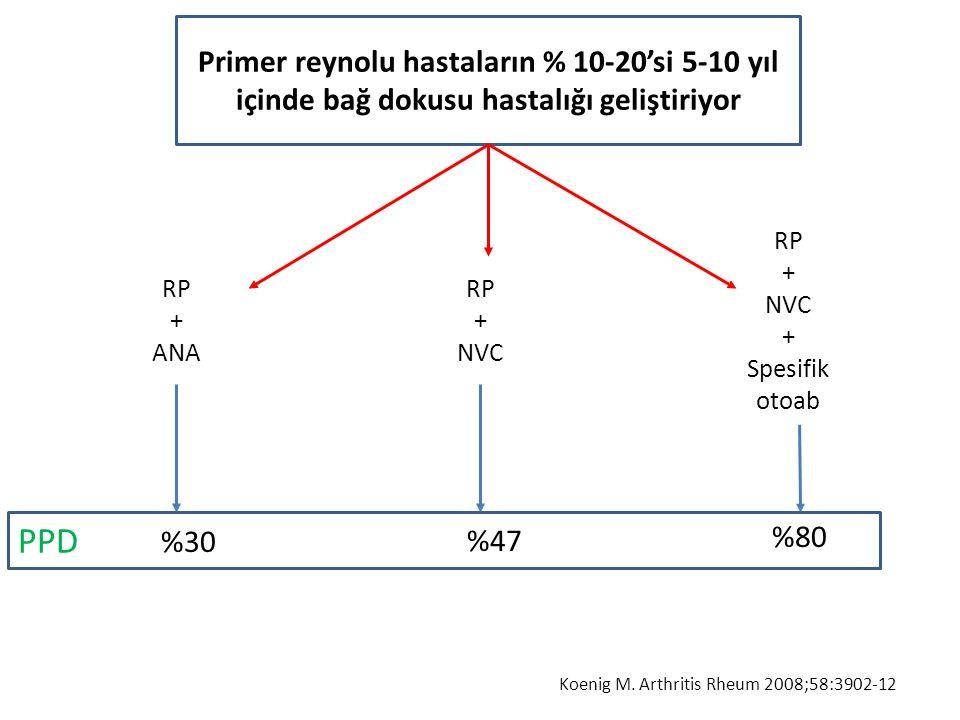 Primer reynolu hastaların % 10-20'si 5-10 yıl içinde bağ dokusu hastalığı geliştiriyor RP + ANA RP + NVC + Spesifik otoab RP + NVC %30 %80 %47 PPD Koe