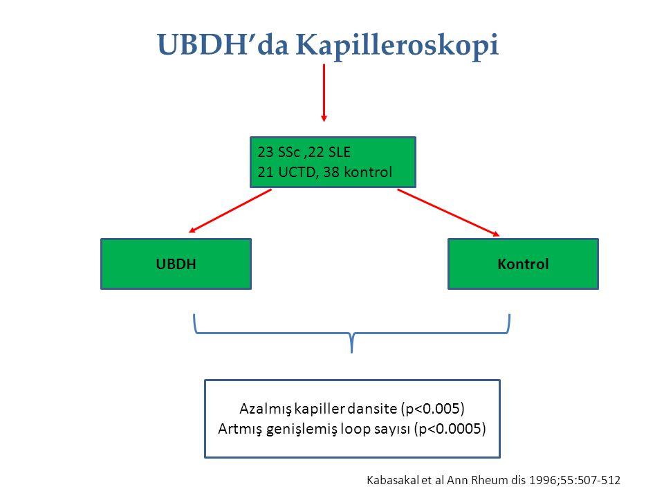 UBDH'da Kapilleroskopi UBDHKontrol 23 SSc,22 SLE 21 UCTD, 38 kontrol Azalmış kapiller dansite (p<0.005) Artmış genişlemiş loop sayısı (p<0.0005) Kabas