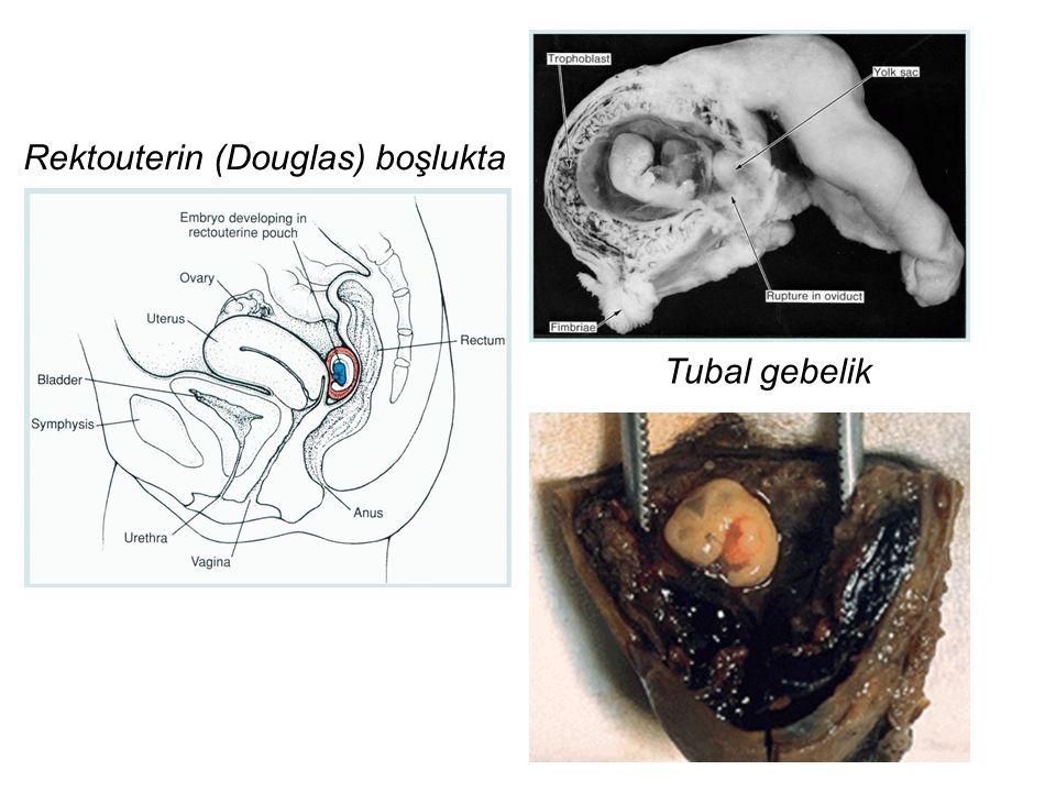 Tubal gebelik Rektouterin (Douglas) boşlukta