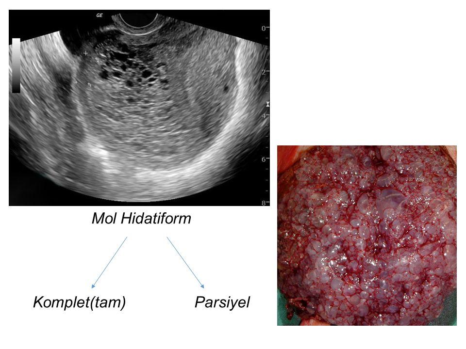 Mol Hidatiform Komplet(tam) Parsiyel