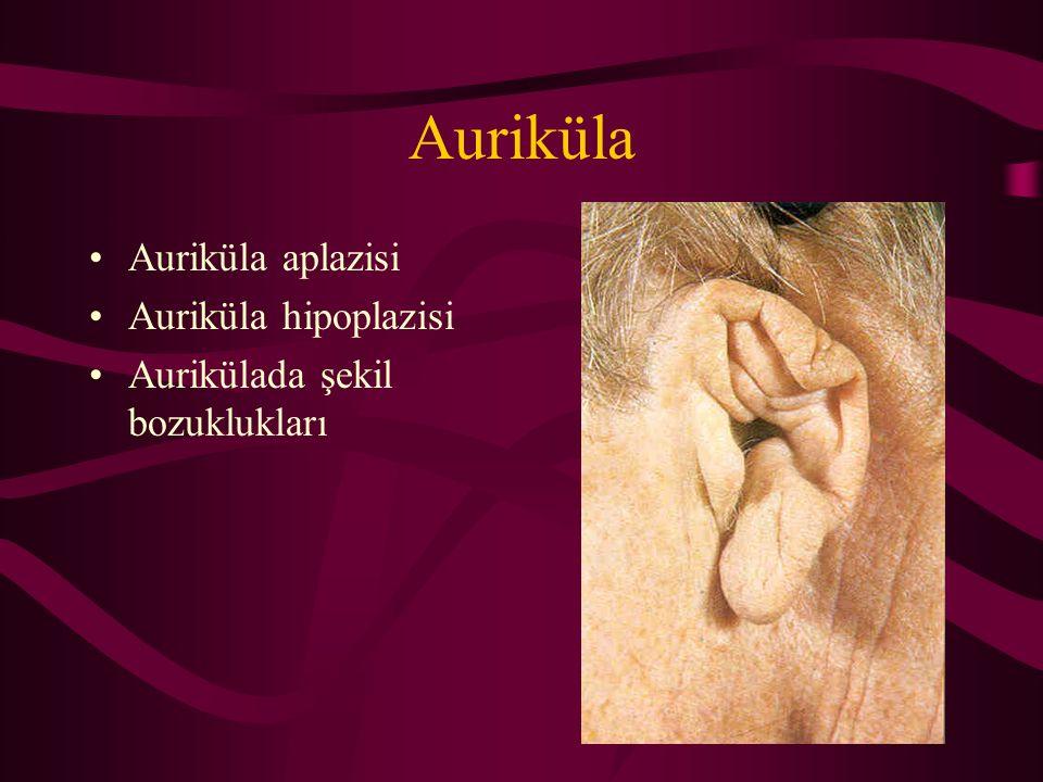 Auriküla Auriküla aplazisi Auriküla hipoplazisi Aurikülada şekil bozuklukları