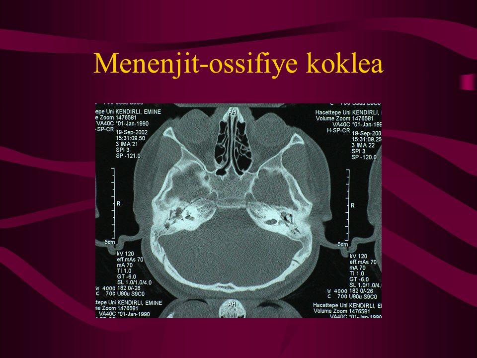 Menenjit-ossifiye koklea