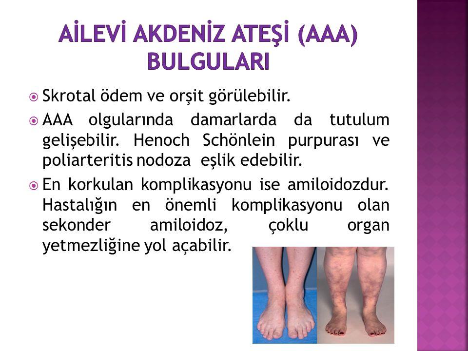  Skrotal ödem ve orşit görülebilir.  AAA olgularında damarlarda da tutulum gelişebilir. Henoch Schönlein purpurası ve poliarteritis nodoza eşlik ede
