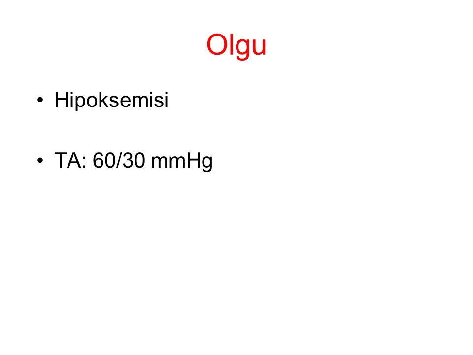 Olgu Hipoksemisi TA: 60/30 mmHg