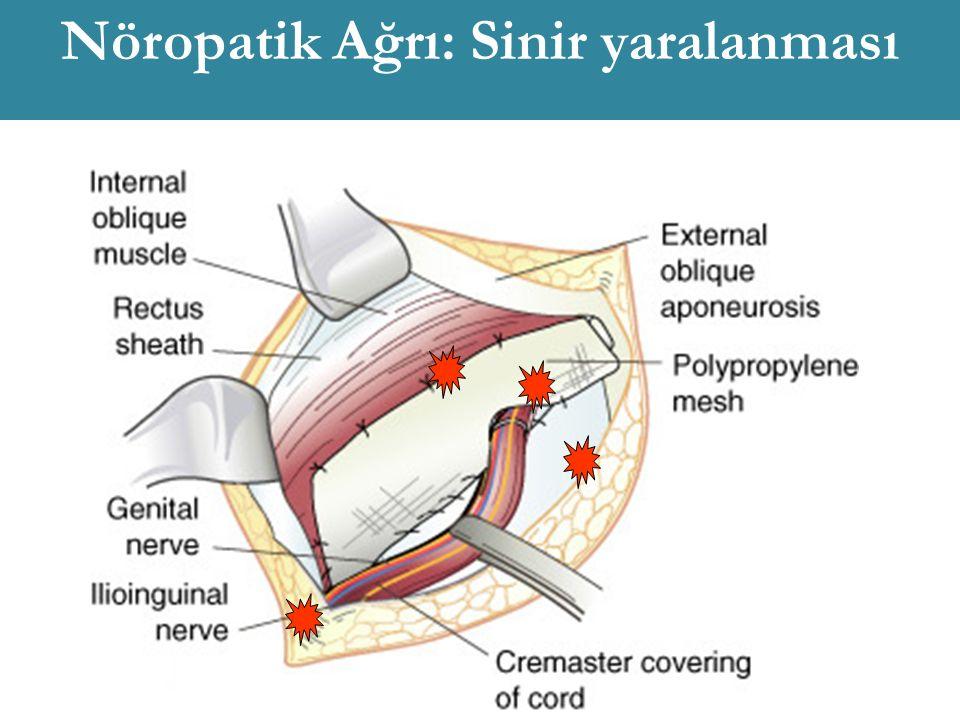 Nöropatik Ağrı: Sinir yaralanması