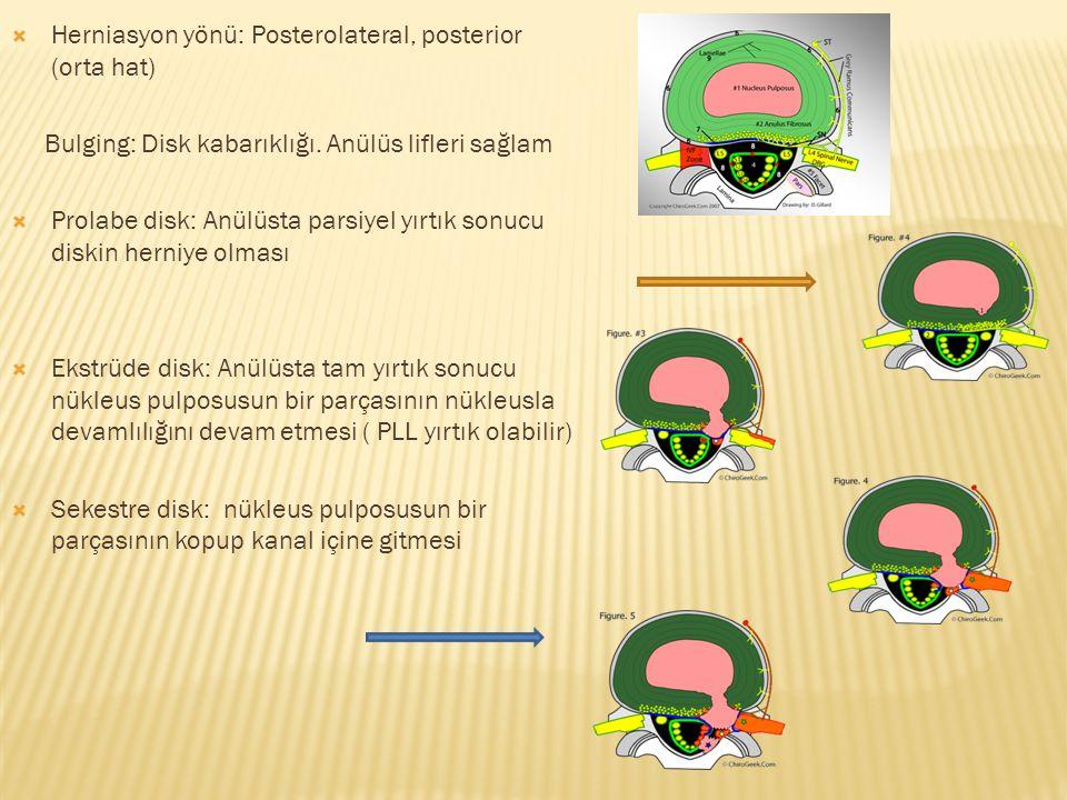  Herniasyon yönü: Posterolateral, posterior (orta hat) Bulging: Disk kabarıklığı.