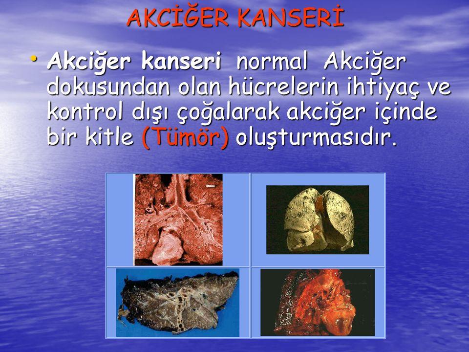 Tüm kanser türleri arasında En ölümcül kanser türü olan akciğer kanseri, dünyada her yıl yaklaşık olarak üç milyon insan yaşamını yitirmesine neden olmaktadır.