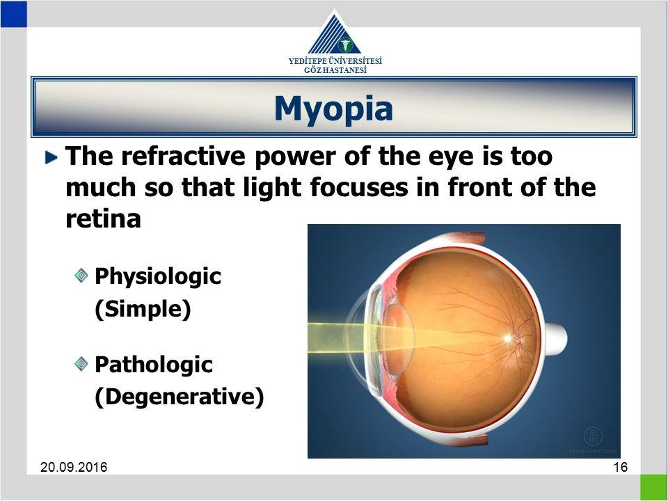 YEDİTEPE ÜNİVERSİTESİ GÖZ HASTANESİ 20.09.201616 Myopia The refractive power of the eye is too much so that light focuses in front of the retina Physi