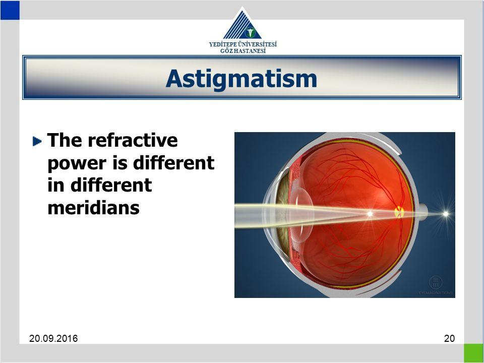 YEDİTEPE ÜNİVERSİTESİ GÖZ HASTANESİ 20.09.201620 Astigmatism The refractive power is different in different meridians