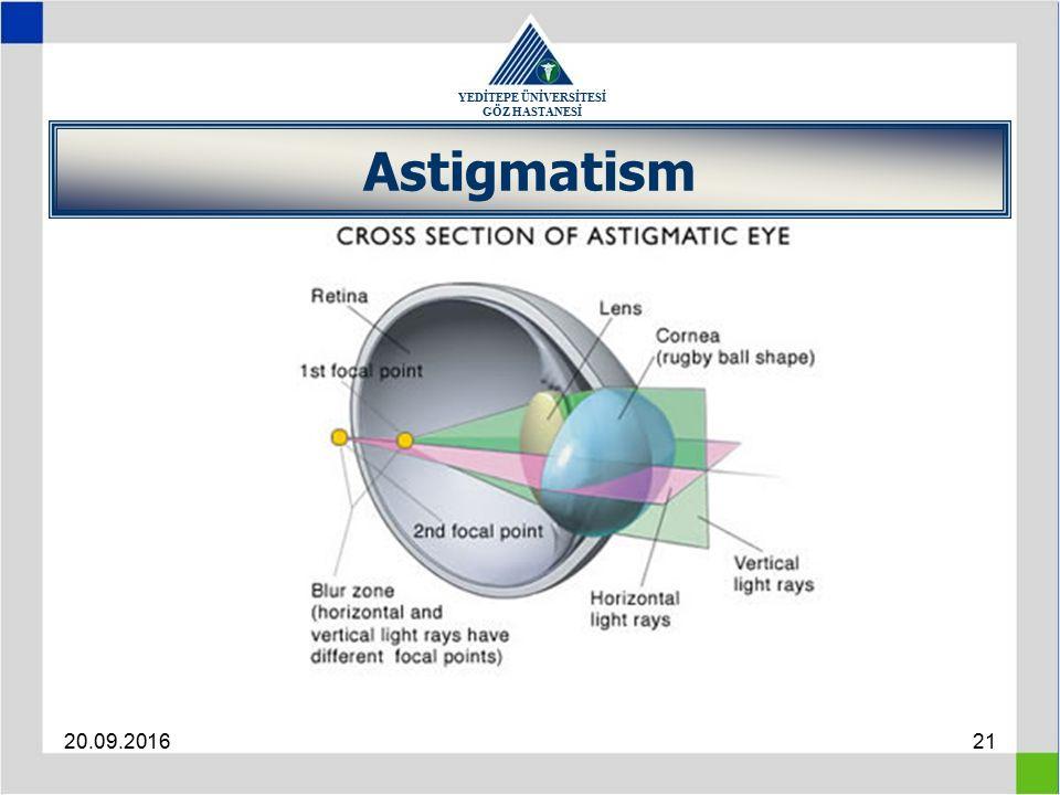 YEDİTEPE ÜNİVERSİTESİ GÖZ HASTANESİ 20.09.201621 Astigmatism