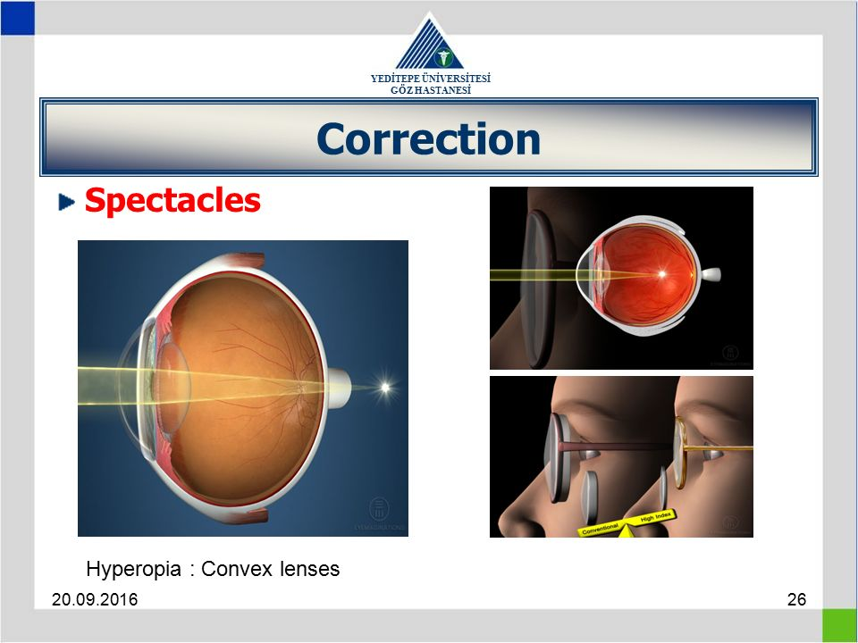 YEDİTEPE ÜNİVERSİTESİ GÖZ HASTANESİ 20.09.201626 Correction Spectacles Hyperopia : Convex lenses