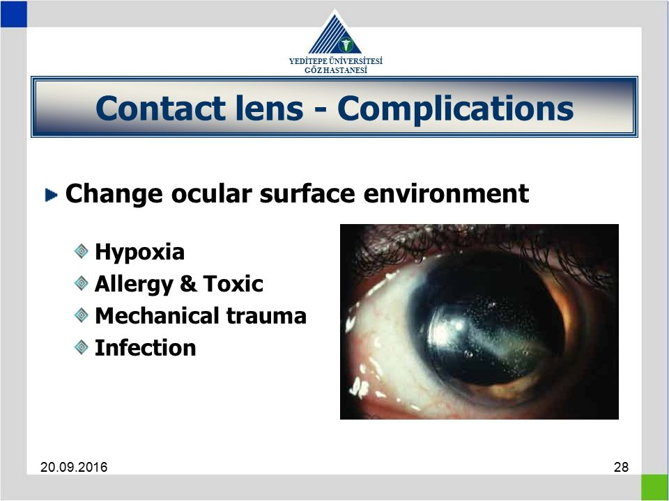 YEDİTEPE ÜNİVERSİTESİ GÖZ HASTANESİ 20.09.201628 Contact lens - Complications Change ocular surface environment Hypoxia Allergy & Toxic Mechanical trauma Infection