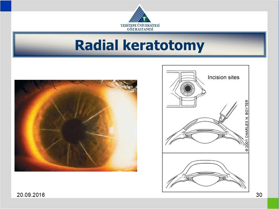 YEDİTEPE ÜNİVERSİTESİ GÖZ HASTANESİ 20.09.201630 Radial keratotomy