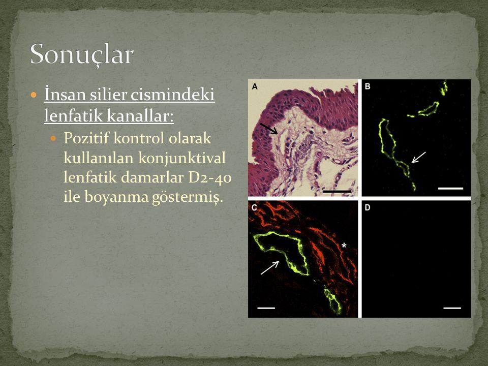 İnsan silier cismindeki lenfatik kanallar: Pozitif kontrol olarak kullanılan konjunktival lenfatik damarlar D2-40 ile boyanma göstermiş.