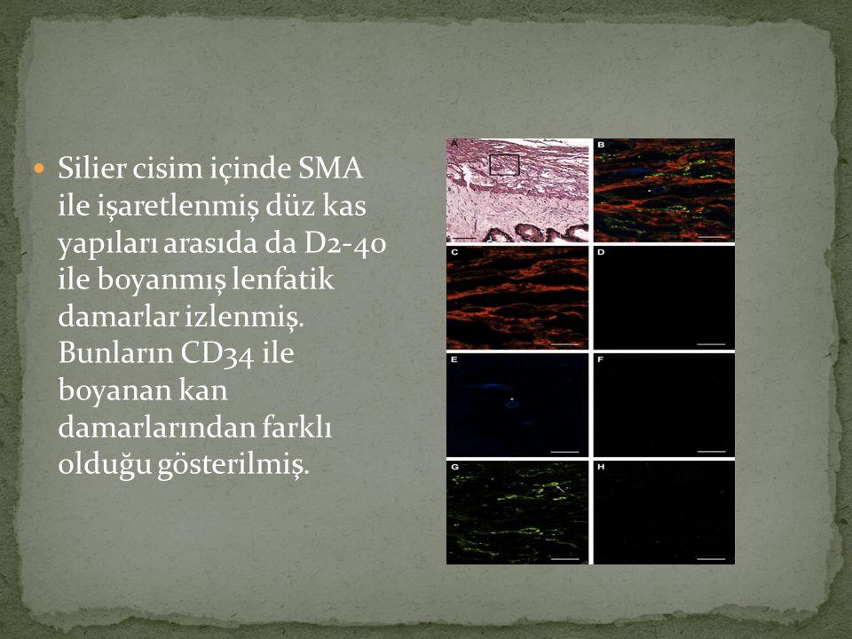 Silier cisim içinde SMA ile işaretlenmiş düz kas yapıları arasıda da D2-40 ile boyanmış lenfatik damarlar izlenmiş.