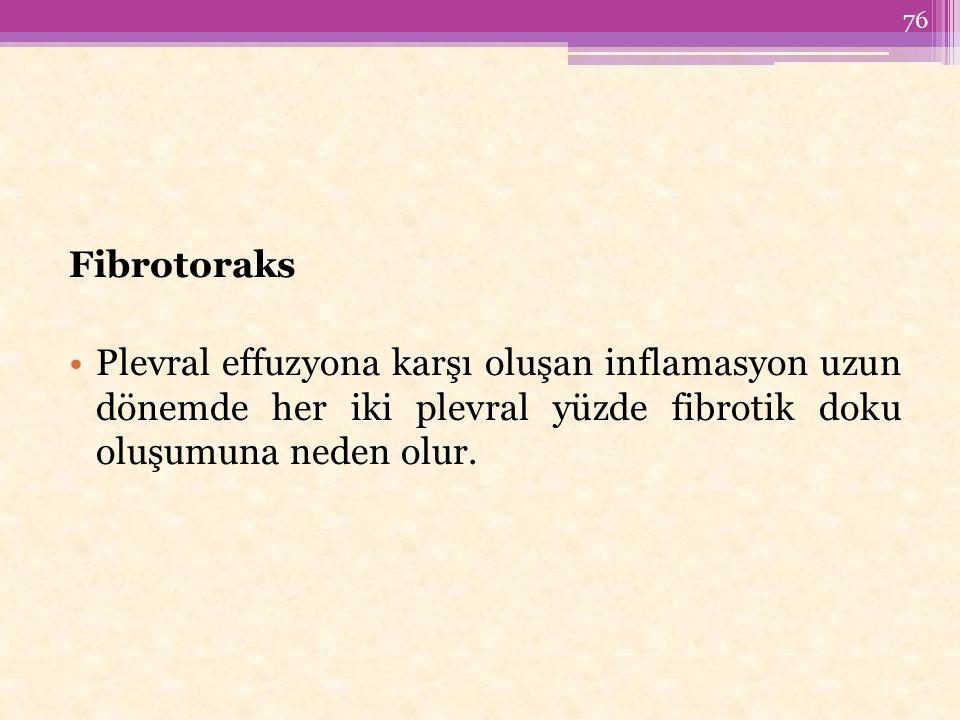Fibrotoraks Plevral effuzyona karşı oluşan inflamasyon uzun dönemde her iki plevral yüzde fibrotik doku oluşumuna neden olur.