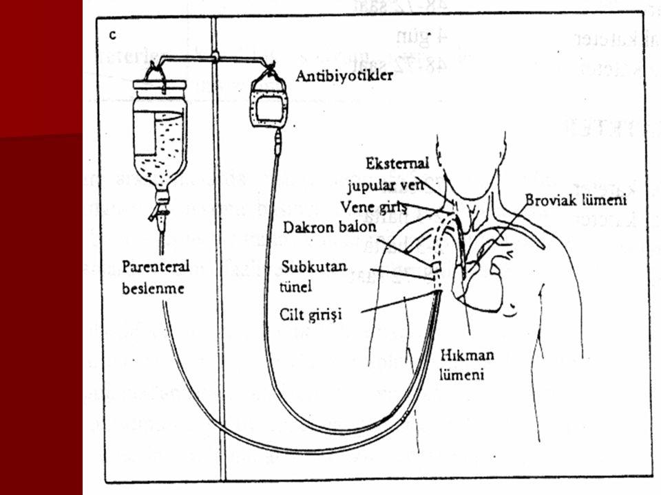 SANTRAL VENÖZ KATETER ENDİKASYONLARI  CVP ölçümleri yapılması gereken hastalar,  Periferik damar yolu bulunamayan hastalar,  Periferik venler ve dokular için irritan olan (potasyum ve vazopressorler gibi) ajanların uygulanmasını gerektiren durumlar,  Total parenteral (TPN) yapılması gereken hastalar,