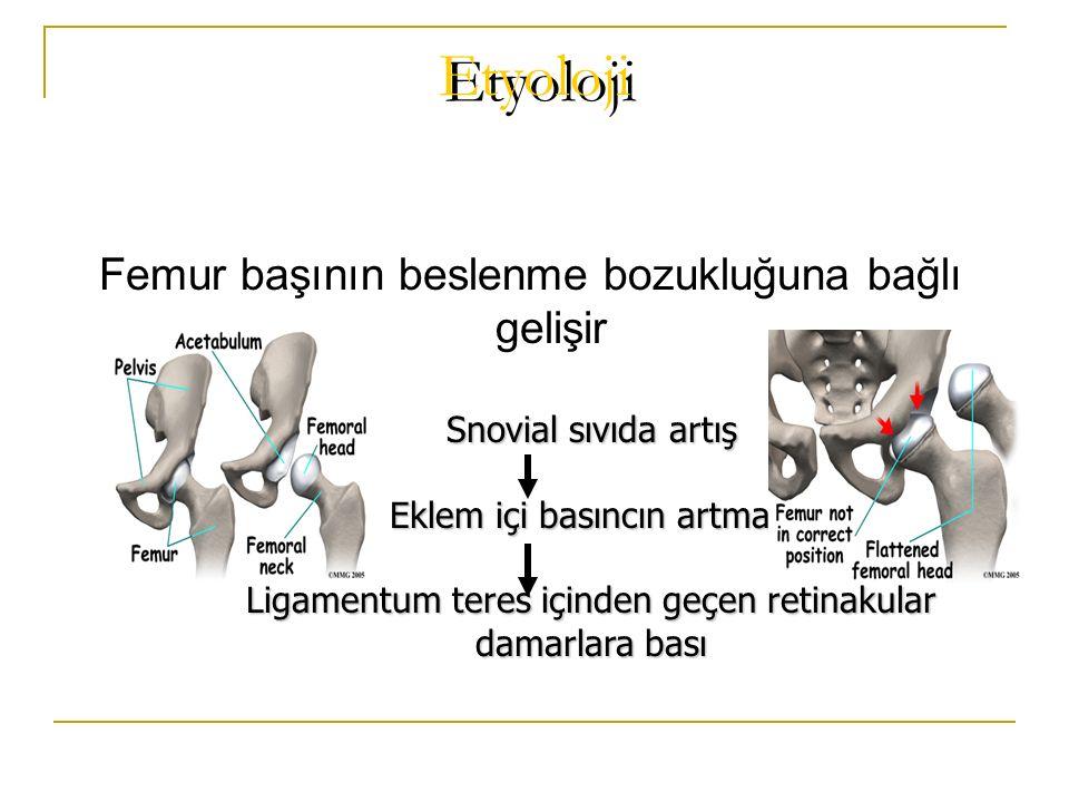 Etyoloji Femur başının beslenme bozukluğuna bağlı gelişir Snovial sıvıda artış Eklem içi basıncın artması Ligamentum teres içinden geçen retinakular d