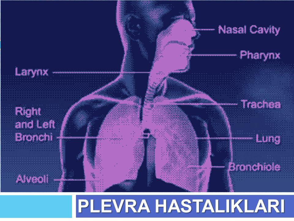 Şilotoraks  Plevral boşlu ğ a lenfatik sıvı toplanmasıdır.