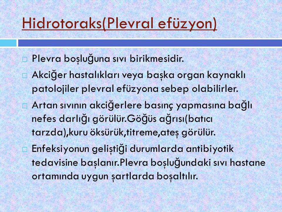 Hidrotoraks(Plevral efüzyon)  Plevra boşlu ğ una sıvı birikmesidir.  Akci ğ er hastalıkları veya başka organ kaynaklı patolojiler plevral efüzyona s