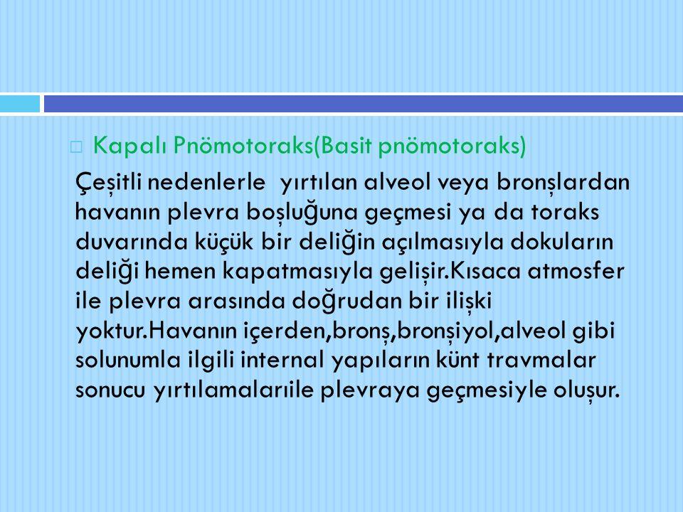  Kapalı Pnömotoraks(Basit pnömotoraks) Çeşitli nedenlerle yırtılan alveol veya bronşlardan havanın plevra boşlu ğ una geçmesi ya da toraks duvarında
