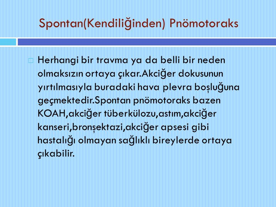Spontan(Kendili ğ inden) Pnömotoraks  Herhangi bir travma ya da belli bir neden olmaksızın ortaya çıkar.Akci ğ er dokusunun yırtılmasıyla buradaki ha