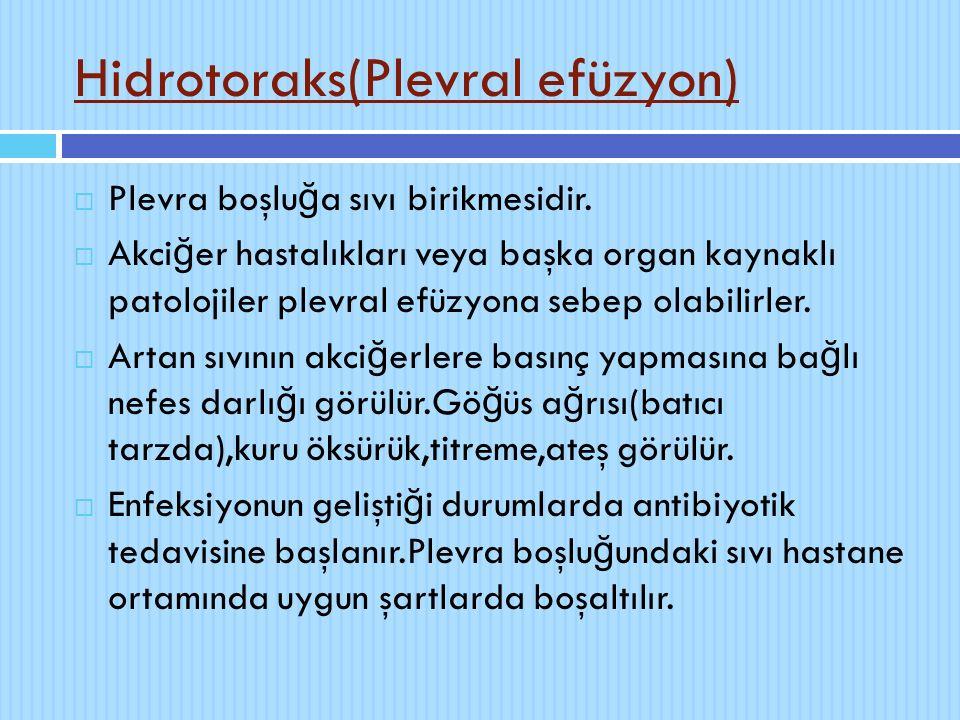 Hidrotoraks(Plevral efüzyon)  Plevra boşlu ğ a sıvı birikmesidir.  Akci ğ er hastalıkları veya başka organ kaynaklı patolojiler plevral efüzyona seb