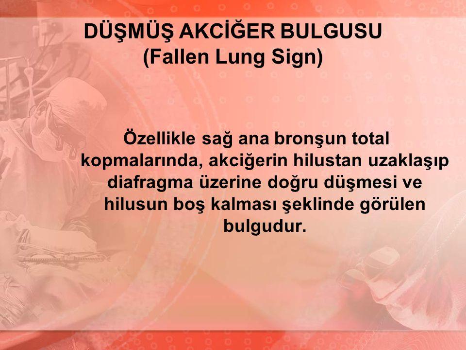 DÜŞMÜŞ AKCİĞER BULGUSU (Fallen Lung Sign) Özellikle sağ ana bronşun total kopmalarında, akciğerin hilustan uzaklaşıp diafragma üzerine doğru düşmesi v