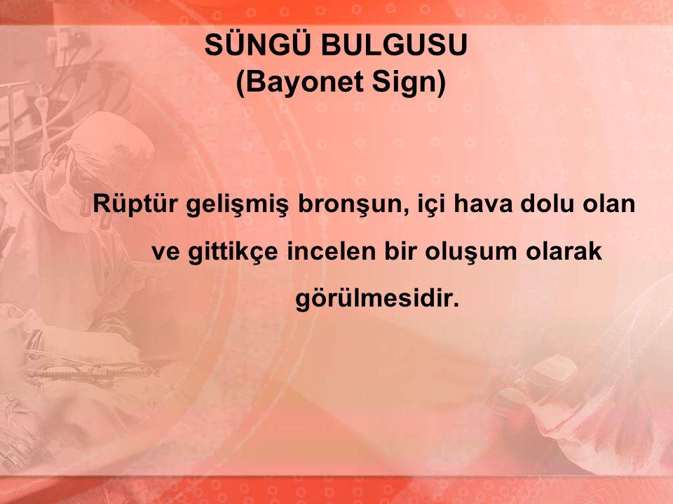 SÜNGÜ BULGUSU (Bayonet Sign) Rüptür gelişmiş bronşun, içi hava dolu olan ve gittikçe incelen bir oluşum olarak görülmesidir.