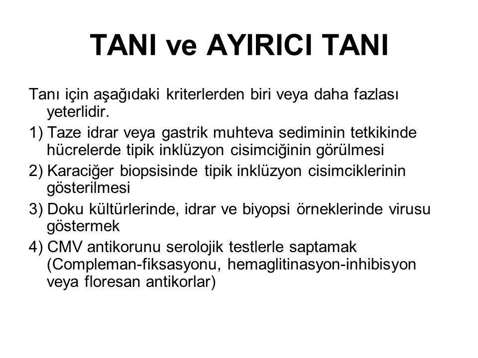 TANI ve AYIRICI TANI Tanı için aşağıdaki kriterlerden biri veya daha fazlası yeterlidir. 1) Taze idrar veya gastrik muhteva sediminin tetkikinde hücre