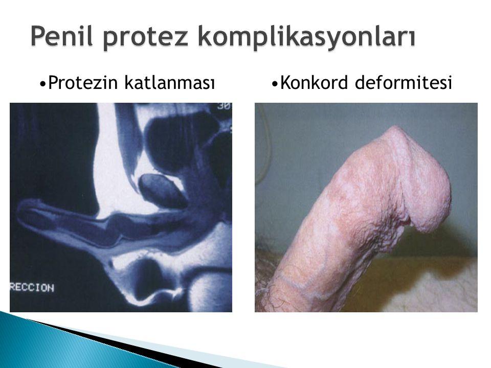 Protezin katlanmasıKonkord deformitesi