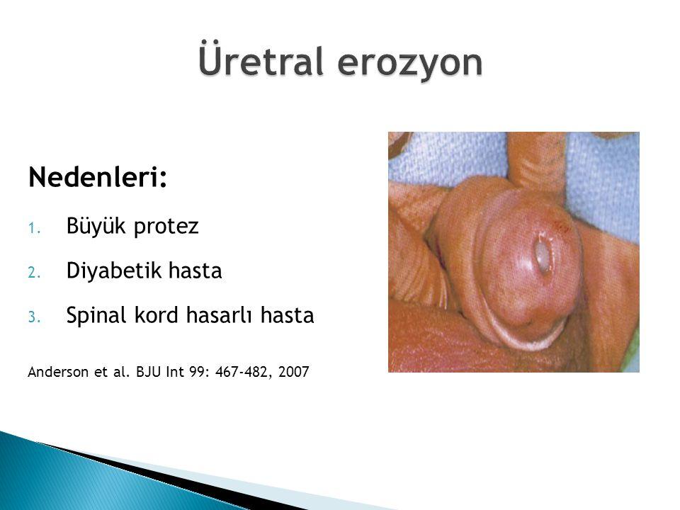 Nedenleri: 1. Büyük protez 2. Diyabetik hasta 3. Spinal kord hasarlı hasta Anderson et al. BJU Int 99: 467-482, 2007