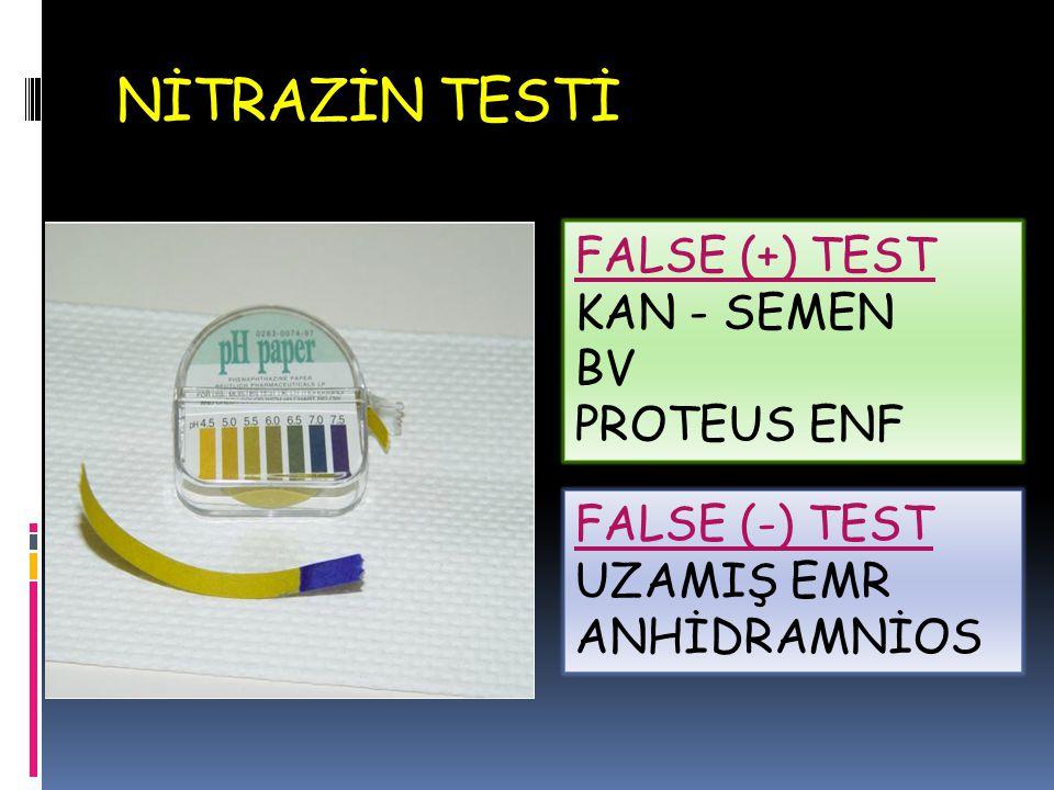 NİTRAZİN TESTİ FALSE (+) TEST KAN - SEMEN BV PROTEUS ENF FALSE (-) TEST UZAMIŞ EMR ANHİDRAMNİOS